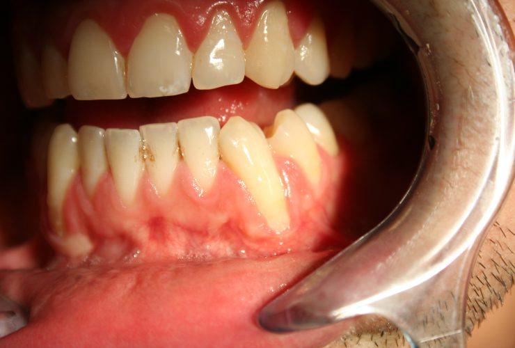 Bicarbonato di sodio e dentina esposta-SoloNotizie24.it