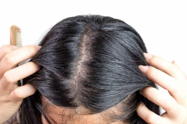 capelli grassi rimedi naturali